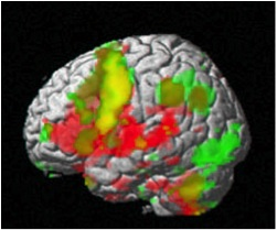 An fMRI of the brain. Green areas were active while subjects remembered information presented visually. Red areas were active while they remembered information presented aurally (by ear). Yellow areas were active for both types (taken from stanford.edu via Bing Images)