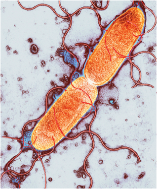 Some of the roughly 1,000 bacterial species in the human gut help make us fat, while others keep us lean. Centre for Infections/Public Health England/Science Photo Library (taken from Nature).
