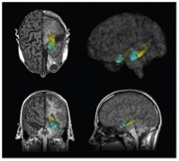 Magnetic Resonance Imaging (MRI) images of hippocampus (yellow) and amygdala (blue), which are symmetrically located in both lobes of the brain (upper right); taken from Butterworth et al. via Bing Images. Read here about these brain regions as related to depression.